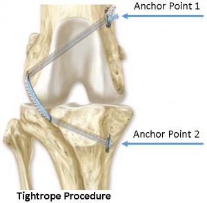 TightropeProcedure