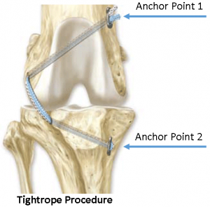 TightropeProcedure